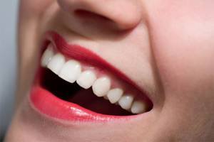 5 Common Dental Issues and How to Prevent Them