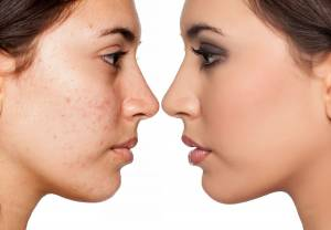3 Important Things to Know About Cystic Acne
